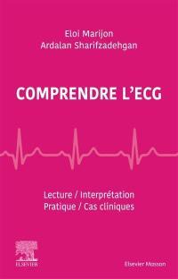 Comprendre l'ECG
