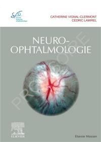 Les myopies