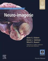 Neuro-imagerie