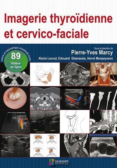 Imagerie thyroïdienne et cervico-faciale