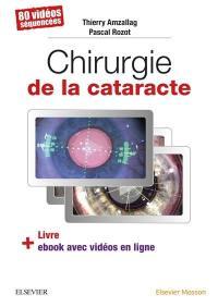 Chirurgie de la cataracte