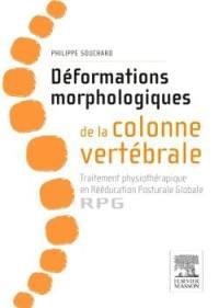 Déformations morphologiques de la colonne vertébrale