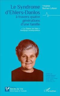 Le syndrome d'Ehlers-Danlos, un mal inconnu à travers quatre générations d'une famille